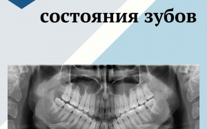 Диагностика состояния зубов
