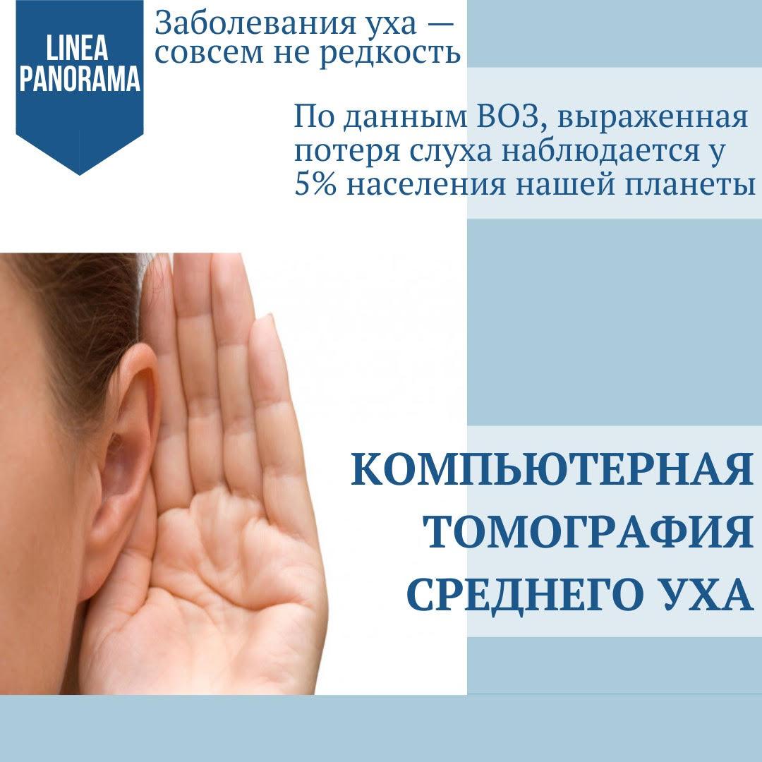 КТ среднего уха