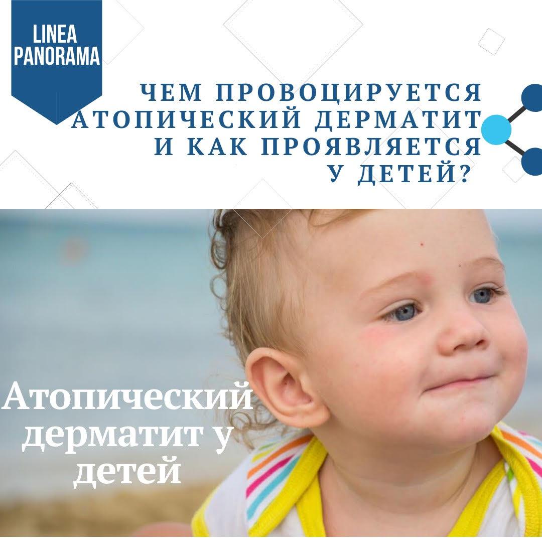 Чем провоцируется атопический дерматит у детей?