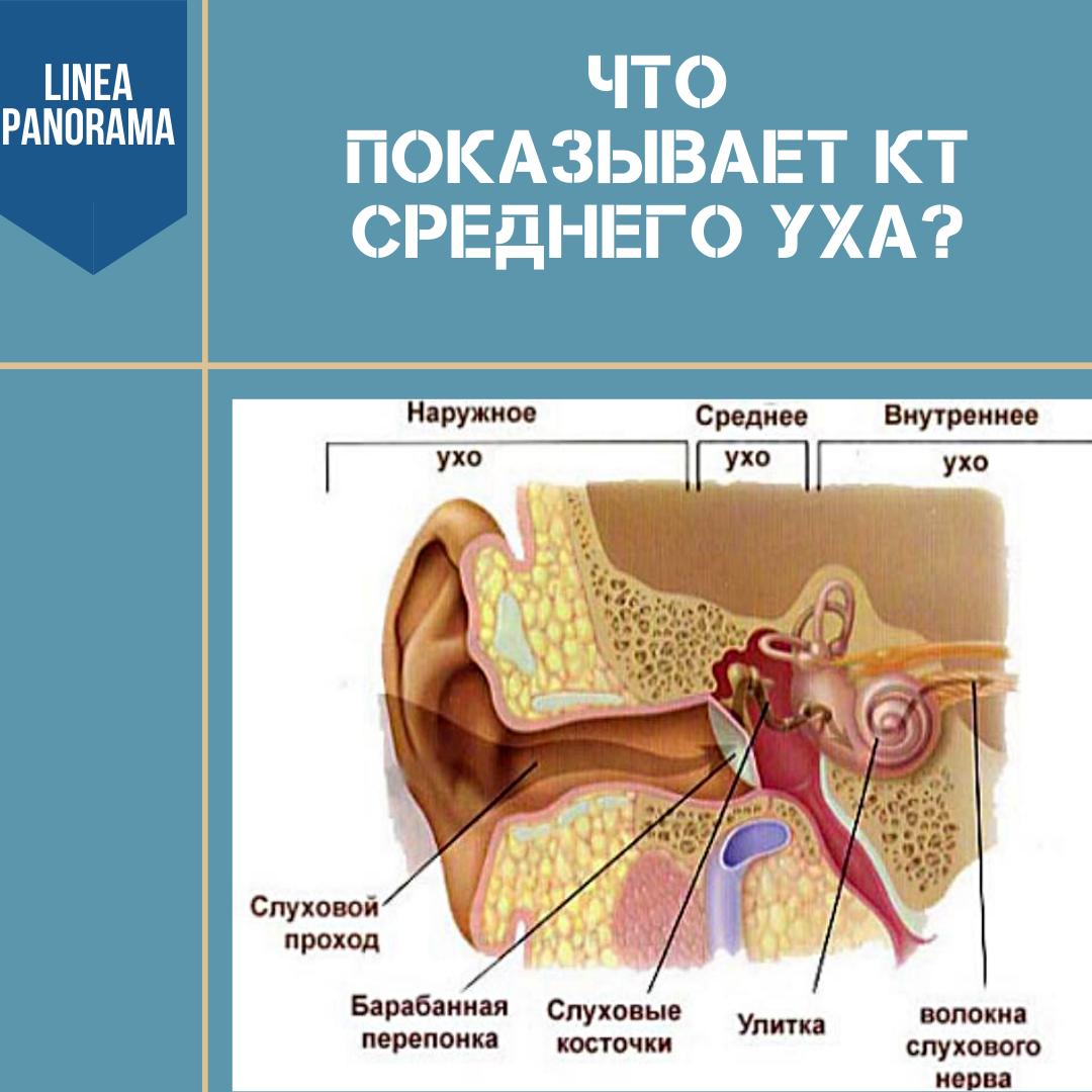 Что показывает КТ среднего уха?