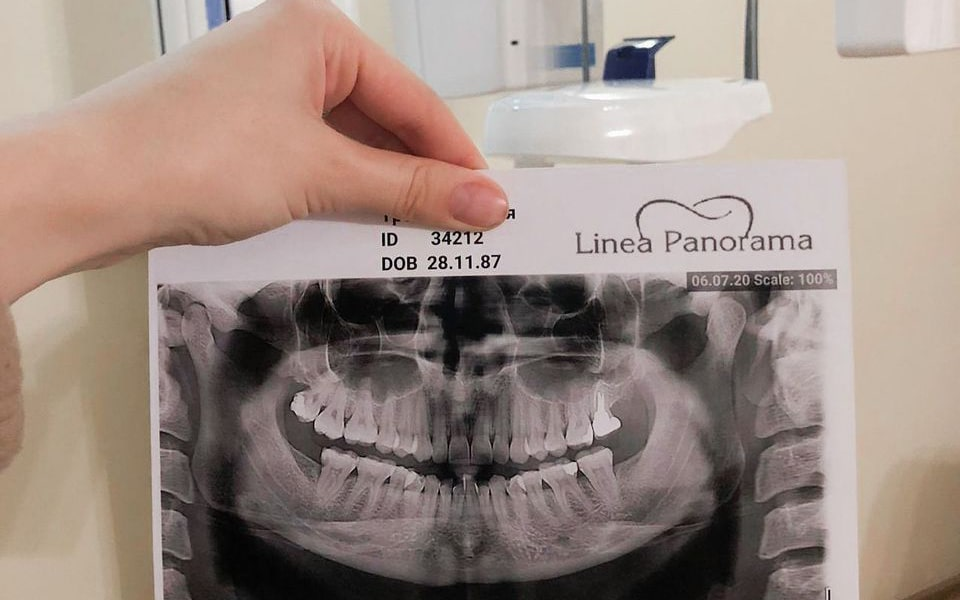 Панорамный снимок в зубов